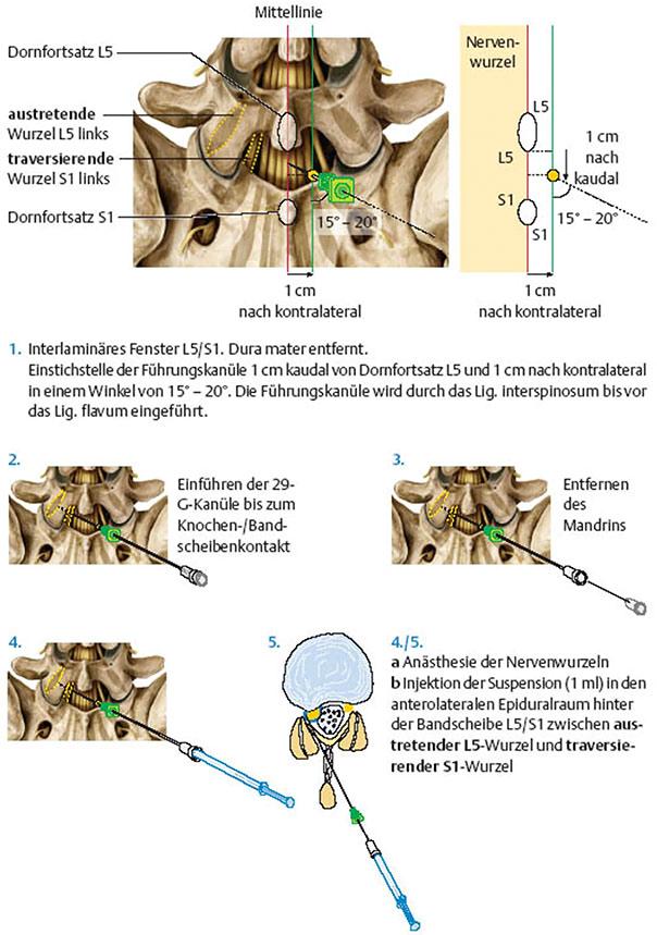 Lendenwirbelsäule - Epidurale perineurale Injektion